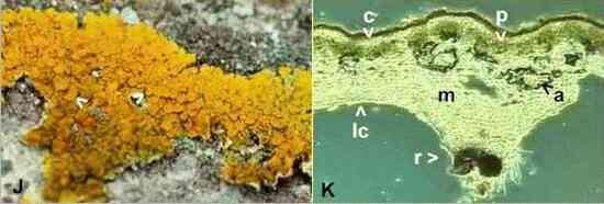 Lichen Microscope Labeled